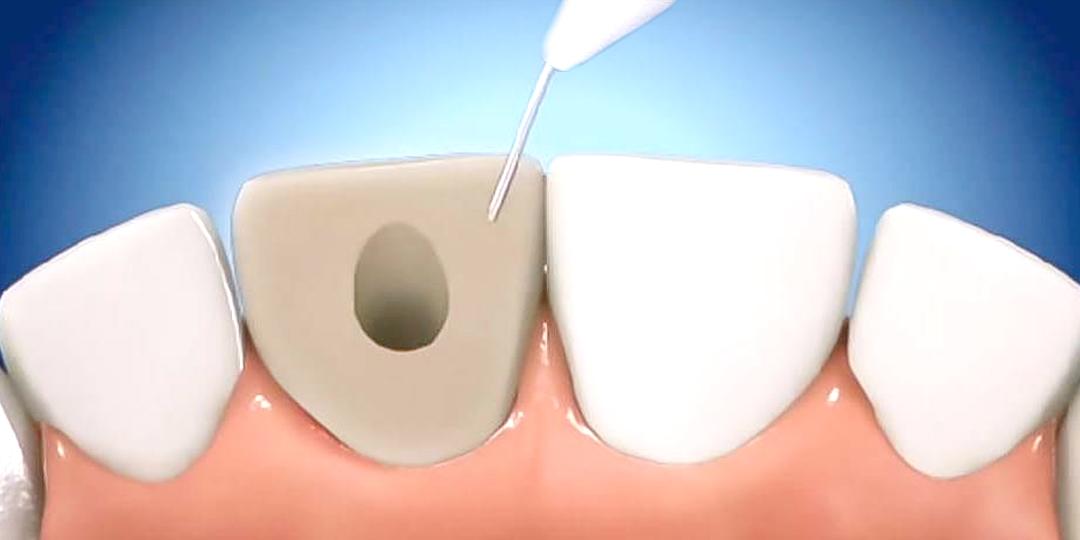 blanqueamiento dental interno, tratamientos del Dr Justo M Balaguer