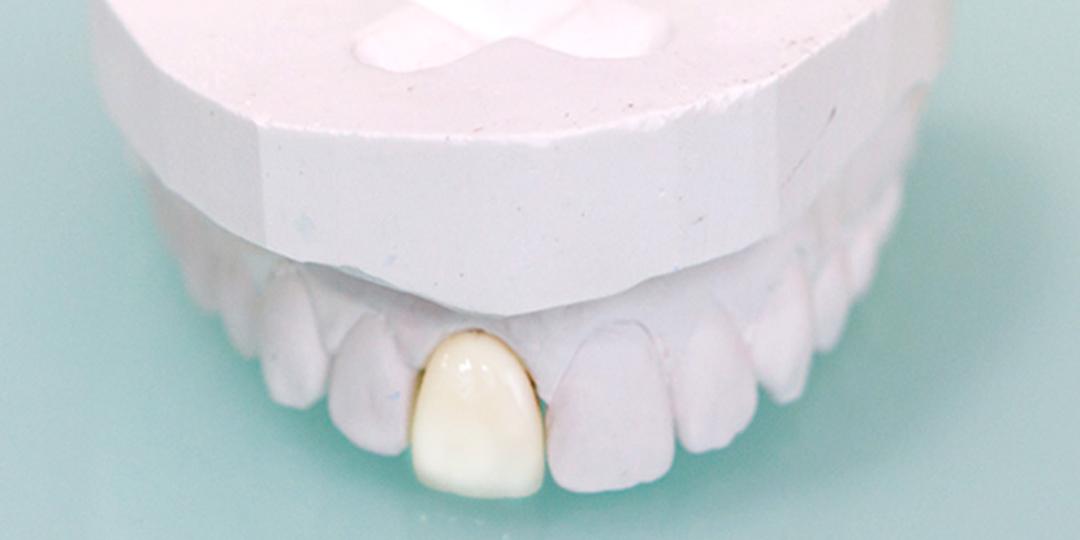 odontología restauradora, tratamientos, Dr Justo M Balaguer